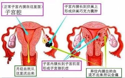成都哪家医院治疗子宫内膜异位症好